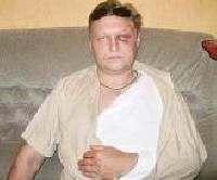 Милиция арестовала болельщика «Динамо» за избиение сотрудника стадиона